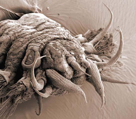 Εκπληκτικές εικόνες από μικροσκόπιο (13)