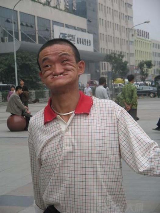 Ο άνδρας που μπορεί να δαγκώσει τη μύτη του (2)