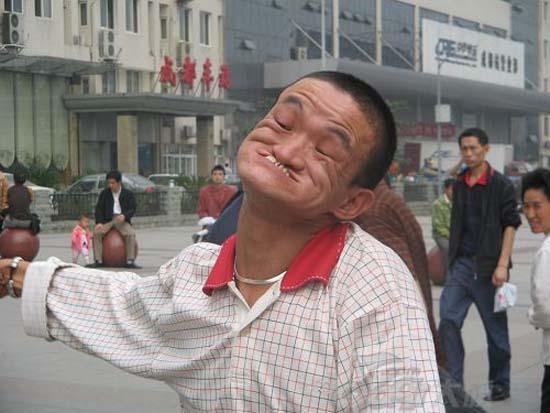 Ο άνδρας που μπορεί να δαγκώσει τη μύτη του (3)