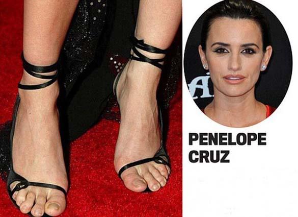 Celebrities με απαίσια πόδια (1)