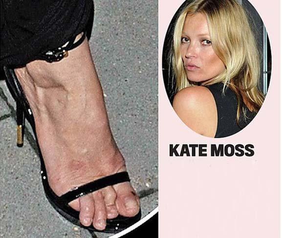 Celebrities με απαίσια πόδια (2)