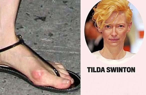 Celebrities με απαίσια πόδια (3)