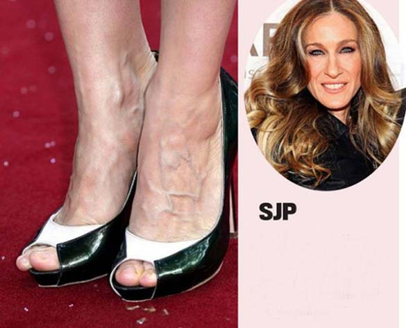Celebrities με απαίσια πόδια (4)
