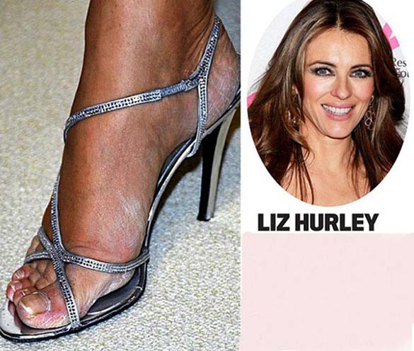 Celebrities με απαίσια πόδια (5)