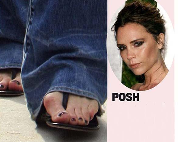 Celebrities με απαίσια πόδια (6)