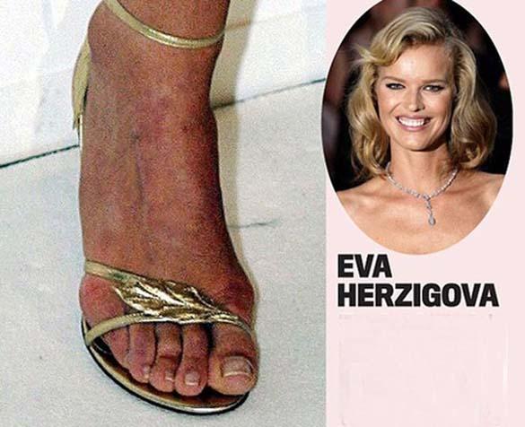Celebrities με απαίσια πόδια (10)