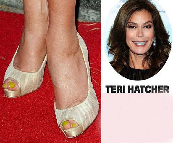 Celebrities με απαίσια πόδια (11)