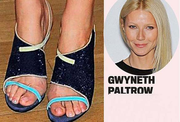 Celebrities με απαίσια πόδια (12)