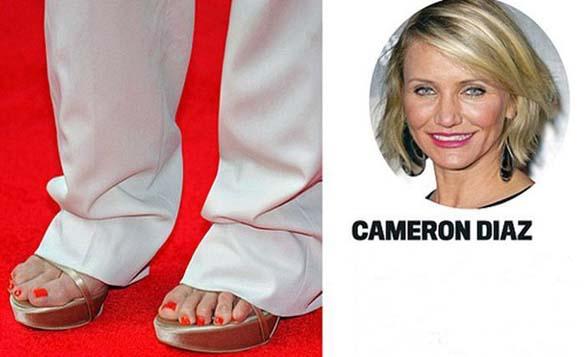 Celebrities με απαίσια πόδια (14)