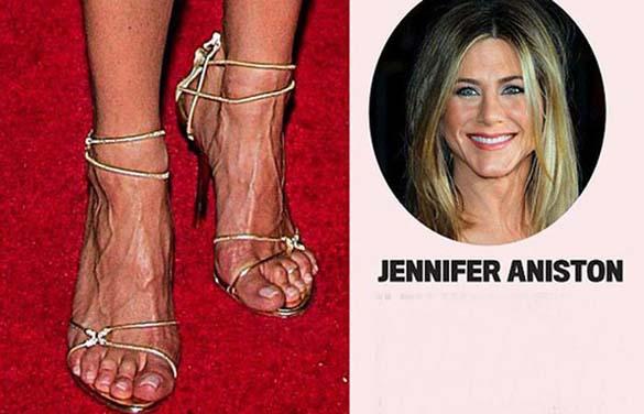Celebrities με απαίσια πόδια (15)