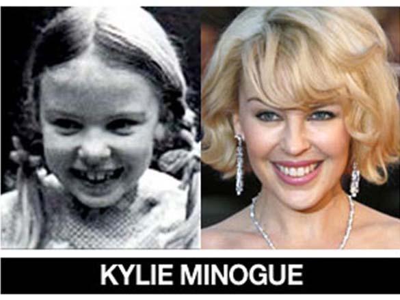 Διάσημοι σε νεαρή ηλικία και τώρα (1)