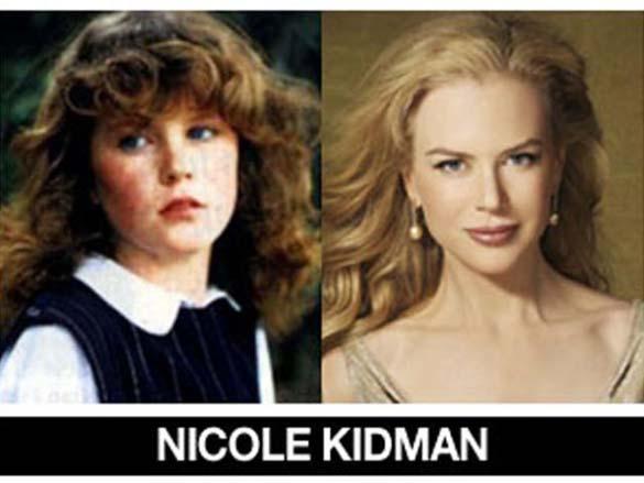 Διάσημοι σε νεαρή ηλικία και τώρα (7)