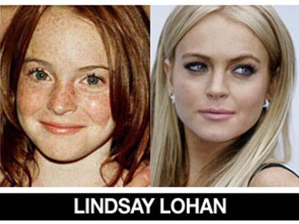 Διάσημοι σε νεαρή ηλικία και τώρα (10)