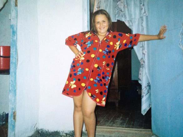 Η εντυπωσιακή περίπτωση αδυνατίσματος ενός κοριτσιού από τη Ρωσία (1)