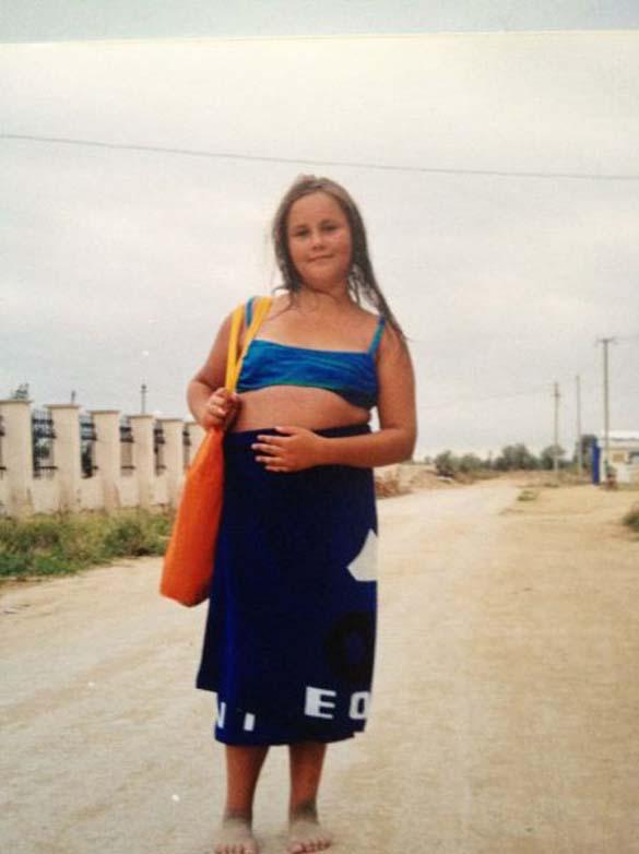 Η εντυπωσιακή περίπτωση αδυνατίσματος ενός κοριτσιού από τη Ρωσία (2)