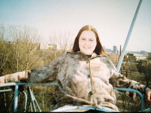 Η εντυπωσιακή περίπτωση αδυνατίσματος ενός κοριτσιού από τη Ρωσία (7)