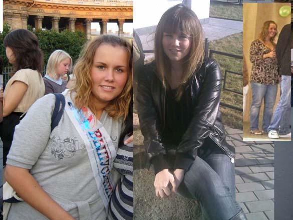 Η εντυπωσιακή περίπτωση αδυνατίσματος ενός κοριτσιού από τη Ρωσία (13)