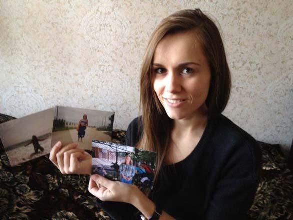 Η εντυπωσιακή περίπτωση αδυνατίσματος ενός κοριτσιού από τη Ρωσία (14)