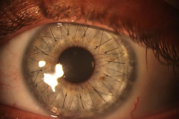 Έτσι είναι τα ράμματα στο μάτι | Φωτογραφία της ημέρας