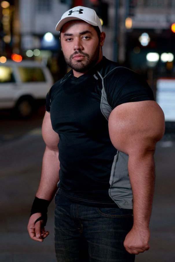 Ο άνδρας με τους μεγαλύτερους δικέφαλους μυς στον κόσμο (11)