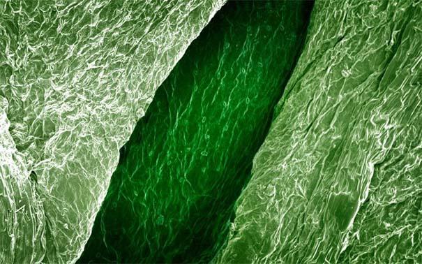 Τροφές κάτω από το μικροσκόπιο (1)