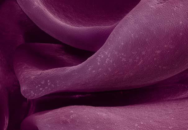 Τροφές κάτω από το μικροσκόπιο (8)