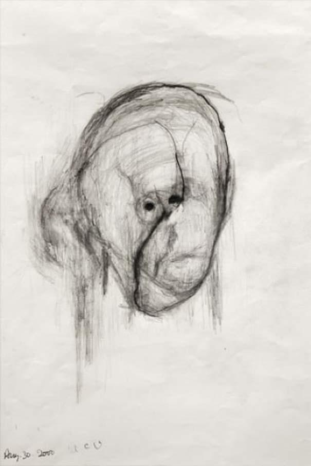 Η δραματική πορεία ενός ασθενή με Alzheimer (7)