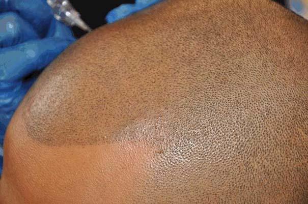 Τατουάζ για καραφλούς (6)
