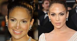 Διάσημες γυναίκες που πάγωσαν τον χρόνο