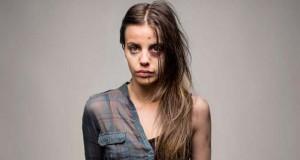 Πριν και μετά: Οι σοκαριστικές επιπτώσεις της χρήσης ναρκωτικών