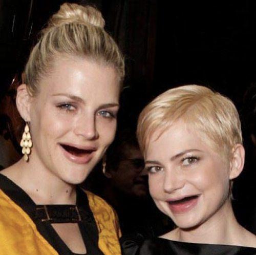 Διάσημες χωρίς δόντια (1)