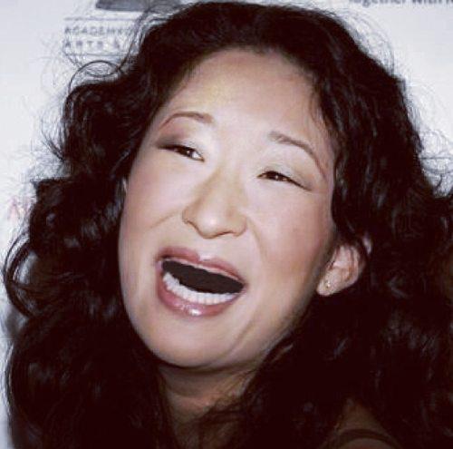 Διάσημες χωρίς δόντια (9)