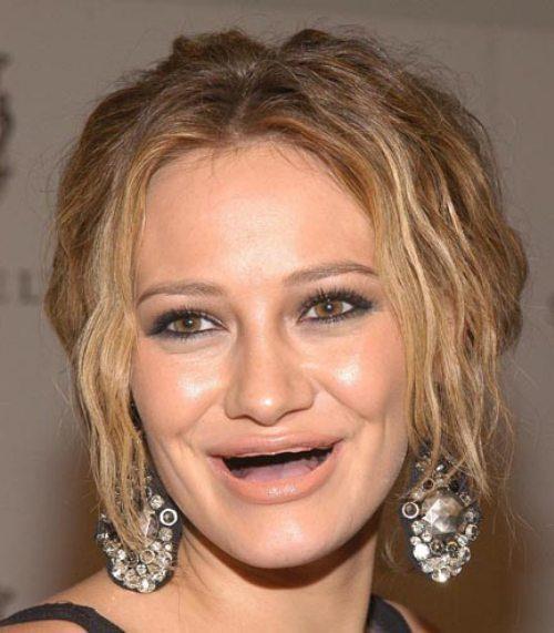 Διάσημες χωρίς δόντια (17)