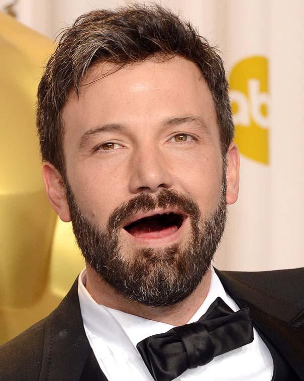 Πως θα ήταν οι διάσημοι άνδρες του Hollywood χωρίς δόντια (7)