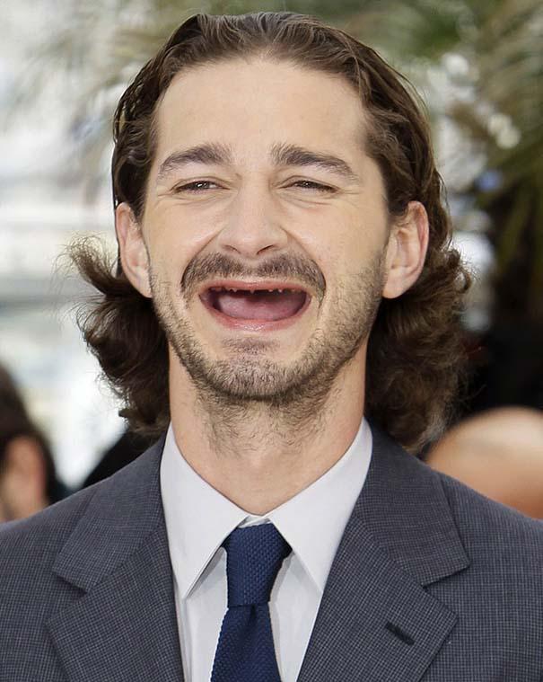 Πως θα ήταν οι διάσημοι άνδρες του Hollywood χωρίς δόντια (8)