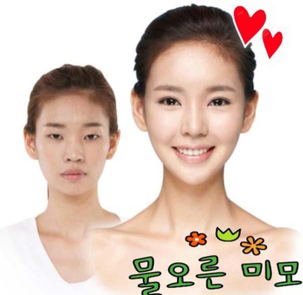 Απίστευτες φωτογραφίες Κορεατών πριν και μετά την πλαστική (2)