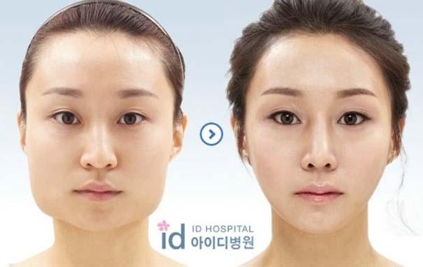 Απίστευτες φωτογραφίες Κορεατών πριν και μετά την πλαστική (3)
