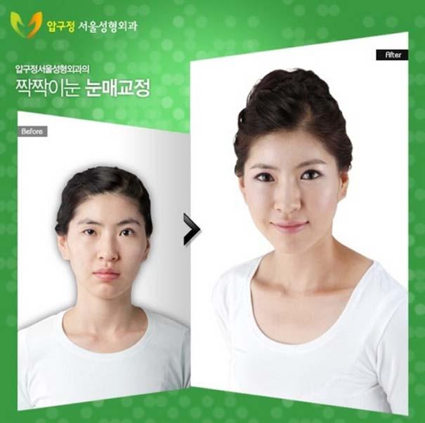 Απίστευτες φωτογραφίες Κορεατών πριν και μετά την πλαστική (6)
