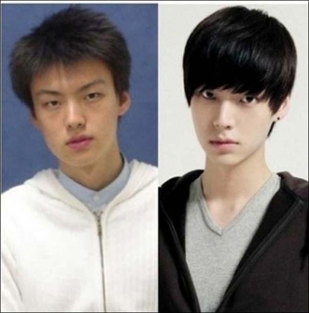 Απίστευτες φωτογραφίες Κορεατών πριν και μετά την πλαστική (8)