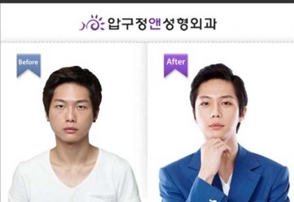 Απίστευτες φωτογραφίες Κορεατών πριν και μετά την πλαστική (9)