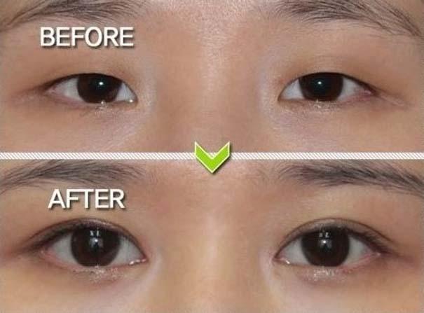Απίστευτες φωτογραφίες Κορεατών πριν και μετά την πλαστική (10)