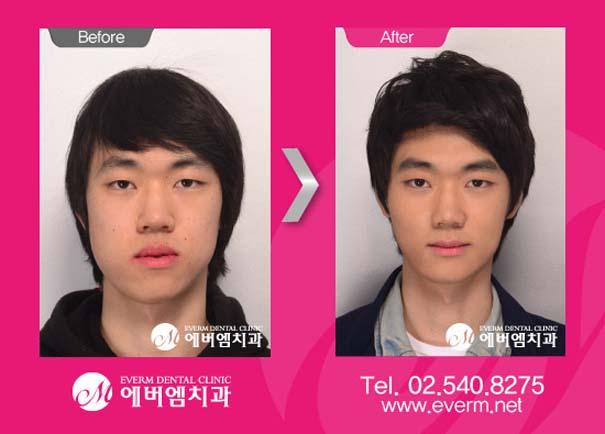 Απίστευτες φωτογραφίες Κορεατών πριν και μετά την πλαστική (12)