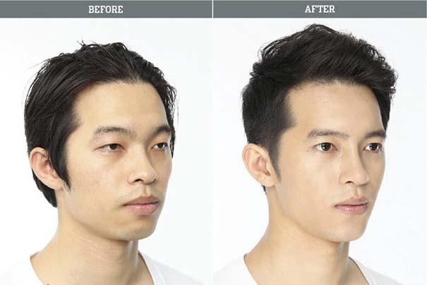 Απίστευτες φωτογραφίες Κορεατών πριν και μετά την πλαστική (13)