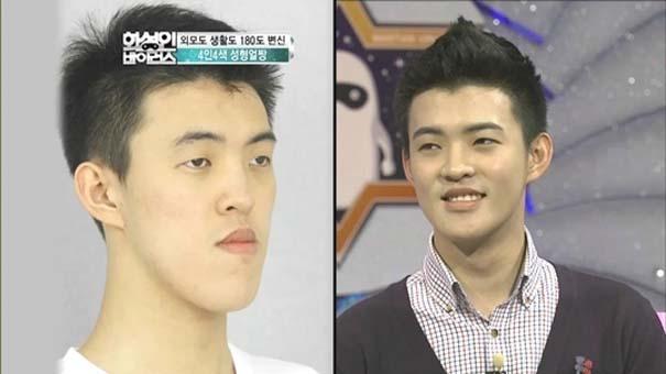 Απίστευτες φωτογραφίες Κορεατών πριν και μετά την πλαστική (14)
