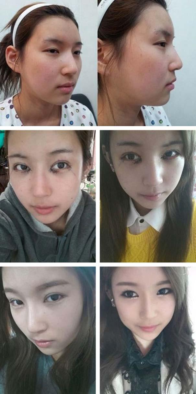 Απίστευτες φωτογραφίες Κορεατών πριν και μετά την πλαστική (15)