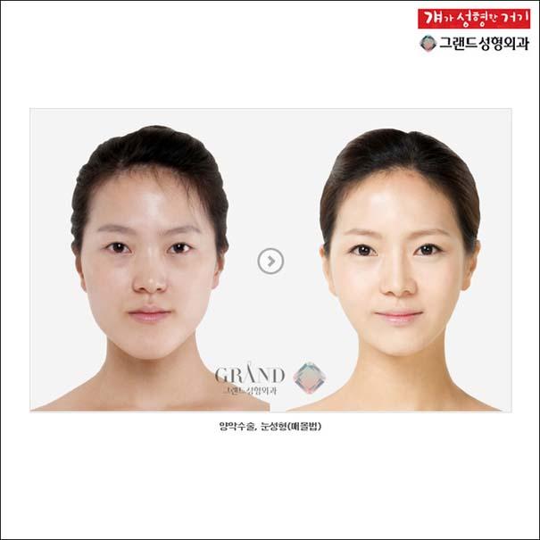 Απίστευτες φωτογραφίες Κορεατών πριν και μετά την πλαστική (16)