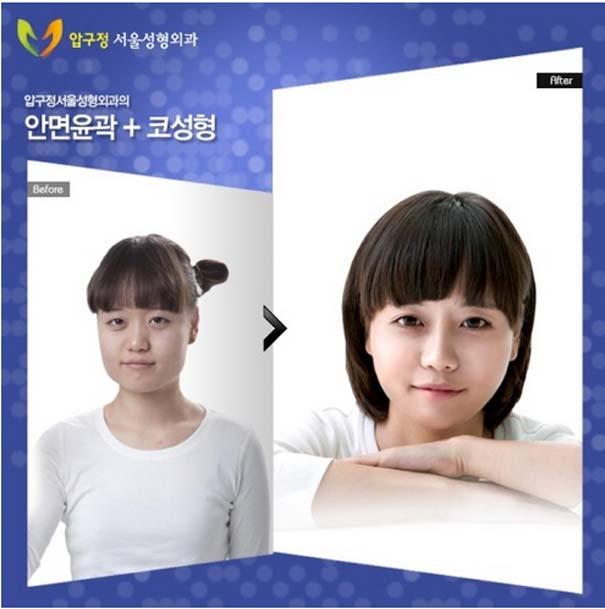 Απίστευτες φωτογραφίες Κορεατών πριν και μετά την πλαστική (18)