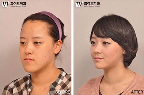 Απίστευτες φωτογραφίες Κορεατών πριν και μετά την πλαστική (19)