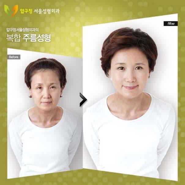 Απίστευτες φωτογραφίες Κορεατών πριν και μετά την πλαστική (21)