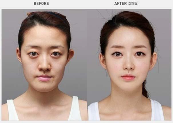 Απίστευτες φωτογραφίες Κορεατών πριν και μετά την πλαστική (22)